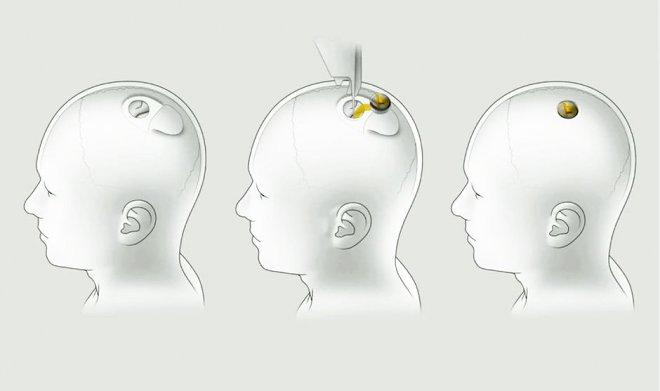 Имплант Neuralink