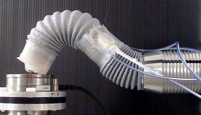 Robotic tentacle
