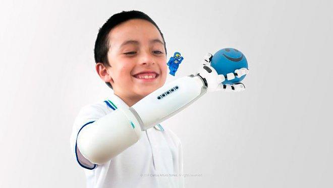 Lego prosthesis