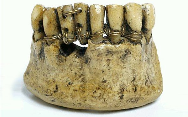 Dental prostheses of ancient Rome
