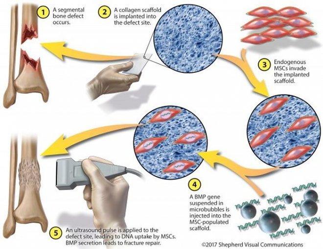 Микропузырьки