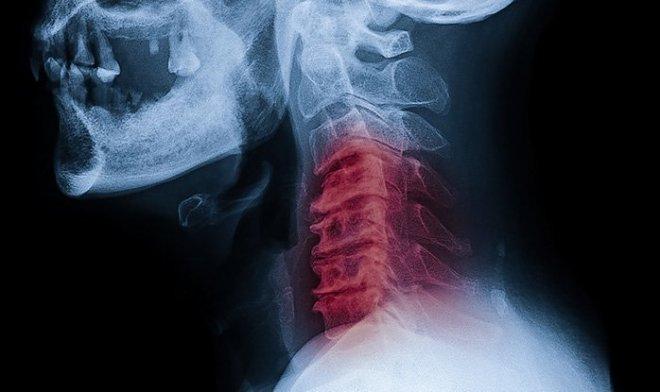 Похрустев шеей, молодой американец оказался в больнице с тяжелым инсультом