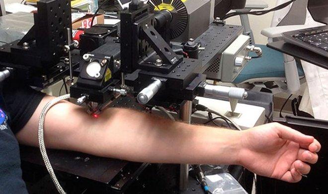 Новый лазер уничтожает раковые клетки сквозь кожу