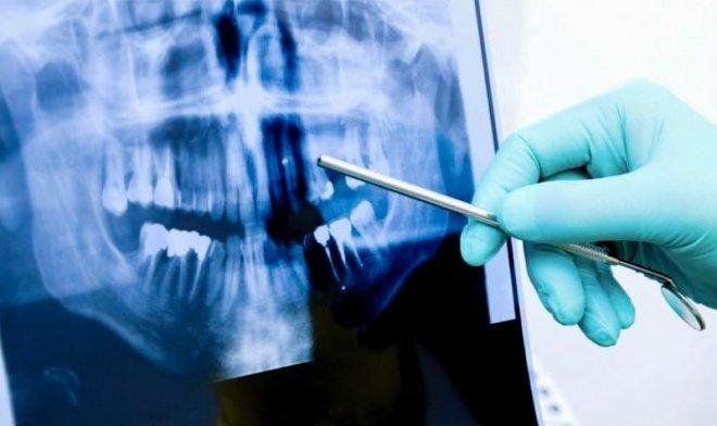 Зубы, подобно древесным кольцам, хранят следы всех важных событий нашей жизни