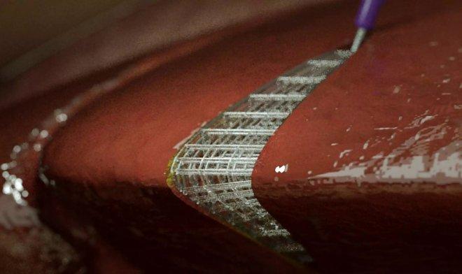 Биочернила позволят печатать живые ткани прямо внутри человеческого тела