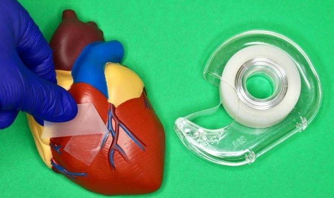Новый хирургический скотч легко заменит швы на внутренних органах