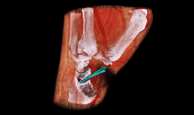Цветной рентгеновский 3D-сканер готов к масштабным испытаниям